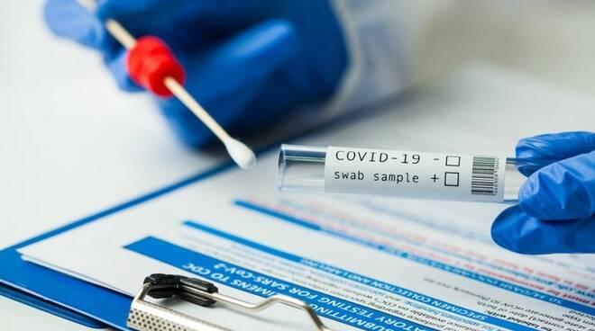 coronavirus, covid, tamponi